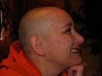 Chemotherapie